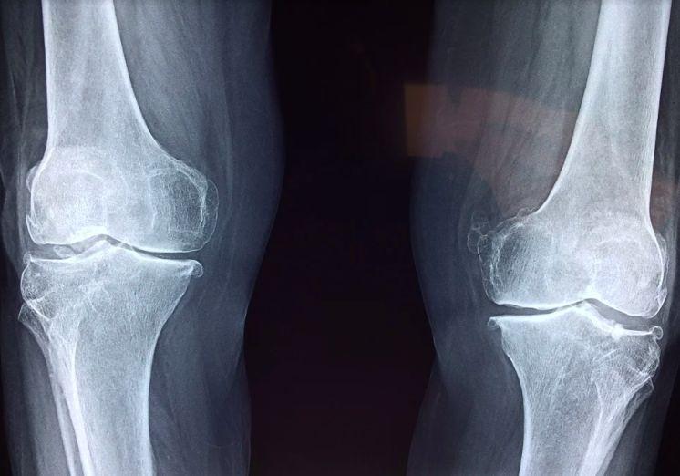 síntomas de la osteoporosis